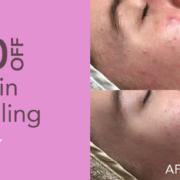 $50 off skin needling in January