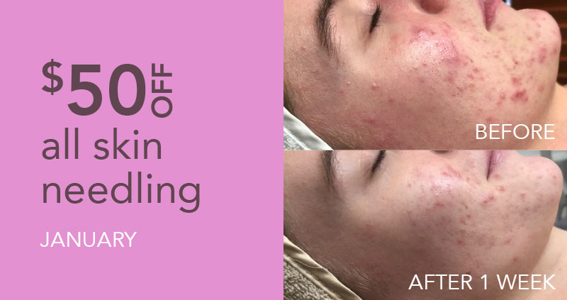 $50 off skin needling in January