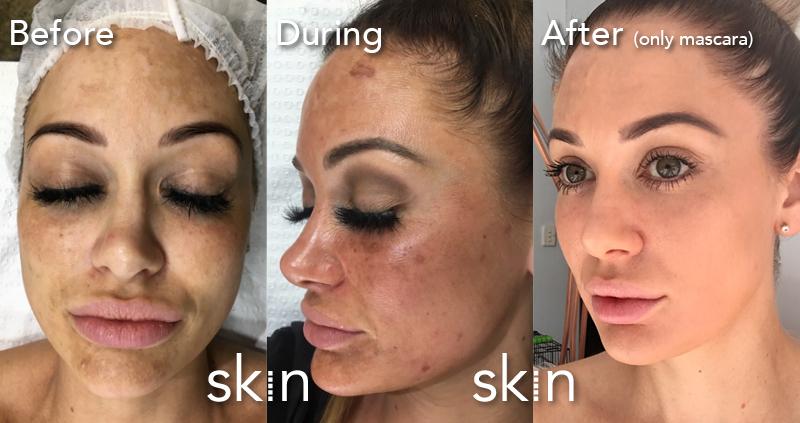 Hailey's skin transformation